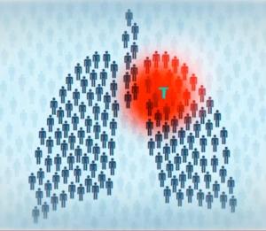 Почему при простуде появляется кровохарканье