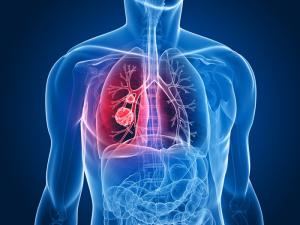 Изображение рака лёгких